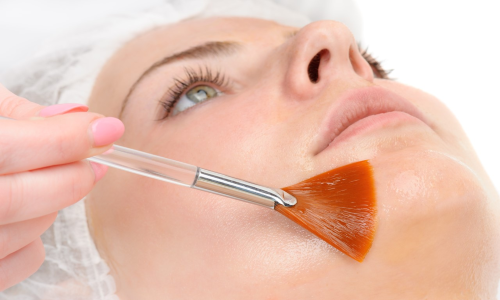 Facial and Cosmeceutical peels